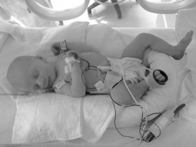 Preemie Baby NICU